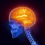 X-ray brain medical scan side view Royalty Free Stock Image