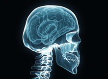X-ray brain and skeleton Stock Photos