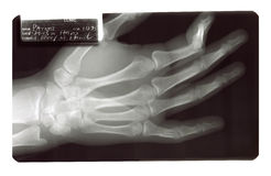 X-Ray Broken Finger Bone Royalty Free Stock Image
