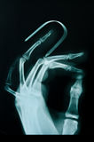 X-ray of broken finger. X-ray of broken finger with splint equipment stock photography