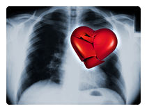 X-Ray Broken Heart. X-ray of a male chest showing one broken red heart Royalty Free Stock Image