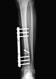 X-ray of the broken leg. After surgery royalty free stock photo