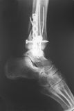 X-ray of the broken leg Stock Images
