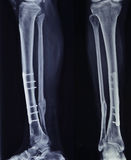 X-ray of the broken leg after surgery Royalty Free Stock Images