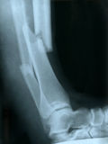 X-ray of a broken leg Royalty Free Stock Image