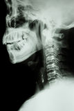 X-ray cervical spine of asian people Stock Photography