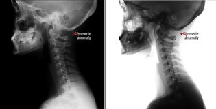 X-ray of the cervical spine. Kimerly anomaly. Marker. X-ray of the cervical spine. Kimerly anomaly. Negative. lateral projection royalty free stock images