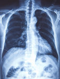 X-ray of the chest Stock Photography