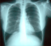 X-ray of the chest Royalty Free Stock Photo