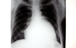 X-ray of chest, enlarged heart stock image