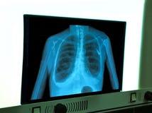 X-ray of chest heart stimulator Stock Photo