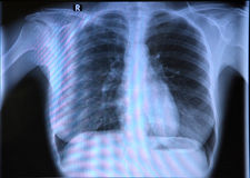 Chest x-ray. A normal chest x-ray PA view. X ray (pa) erect chest blue film of young person examines x-ray View royalty free stock images
