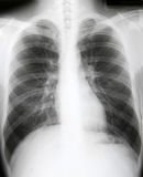 X-ray of chest of patient. X-ray of chest of healthy patient