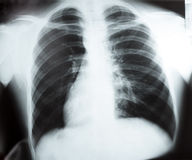 X-ray of chest on previewer Royalty Free Stock Images