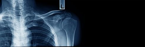 X-ray clavicle fracture. Accident of old man at shoulder part stock photos
