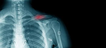 X-ray clavicle fracture. Accident of old man at shoulder part stock image