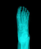 X-Ray. Close up of an xray of a foot stock photography
