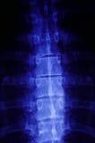 X-ray closeup Royalty Free Stock Photography