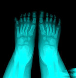 X-Ray. Closeup image of classic xray image of chile feet stock photos