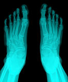 X-Ray. Closeup image of classic xray image of feet stock photography