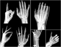 X-ray. Collection x-ray of hands , high quality image stock image
