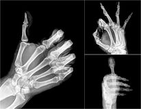 X-ray. Collection X-ray symbol hands stock images