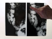 X-ray of colon. Doctors hand pointing at X-ray of colon Royalty Free Stock Photos