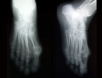 Plain film X-ray, radiography, of complete foot in two projections royalty free stock image