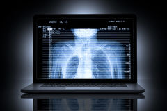 X-Ray CT Scan Computer Healthcare Stock Images