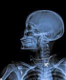 X Ray czaszka Fotografia Royalty Free