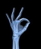 X Ray da mão Fotografia de Stock