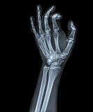 X Ray de la mano foto de archivo