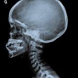 X Ray de la vista lateral del cráneo humano del niño Imagen de archivo libre de regalías