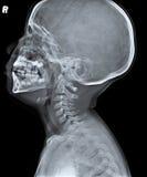 X Ray de la vista lateral del cráneo humano del niño Imágenes de archivo libres de regalías