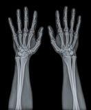 X Ray degli entrambi mano Immagini Stock Libere da Diritti