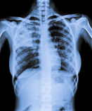 X Ray del petto infettato Fotografie Stock
