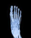 X Ray del piede destro Fotografia Stock