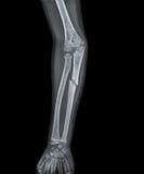 X Ray della mano con la frattura Immagini Stock Libere da Diritti
