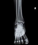 X Ray della vista frontale dell'articolazione della caviglia Fotografia Stock Libera da Diritti