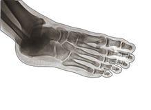 X Ray der Seitenansicht des Knöchelgelenkes Stockfoto