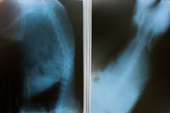 x ray for  dog Stock Image