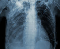 X-ray exam of patient after heart surgery. X-ray examination of patient after heart surgery stock images