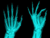 X-Ray. Examining pair hand radiography , X-ray stock photo