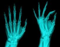 X-Ray. Examining pair hand radiography , X-ray Stock Photo