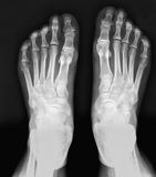 X-ray feet. royalty free stock photos
