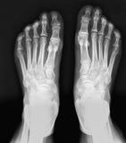 X-ray feet. Royalty Free Stock Photos