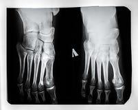 X-ray of the feet Royalty Free Stock Photo