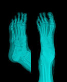 X-Ray. Feet , 2 view royalty free stock photos