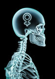 X-ray female thinking Stock Image