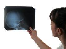 X-ray film. X-ray medicine film of human skull bone in hand stock image